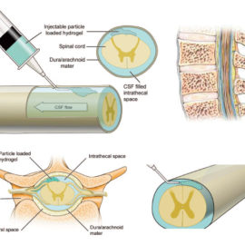 Injectable Hydrogels